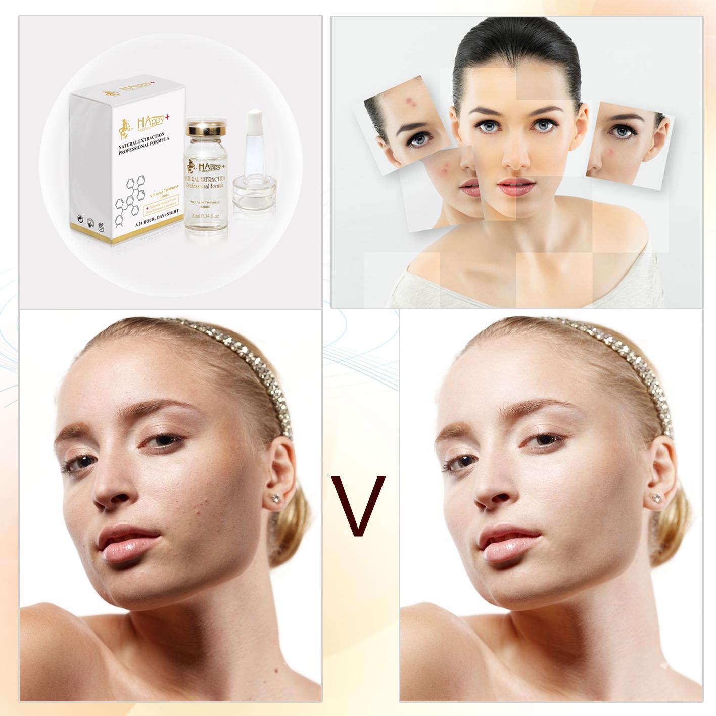 remove acne & scars