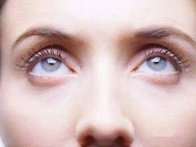 eye aging