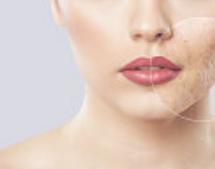 clear pimples and narrow poresacne,comedo,pimple,acne mark,antibacterial anti-inflammatory,light scar,skin repair ,skin balance,Bisabolol,antioxidant